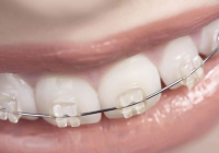 braces for teens